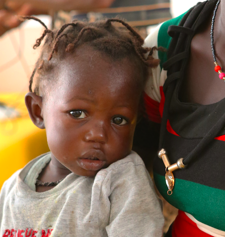 PORT LOKO, SIERRA LEONE - January 10, 2015: Two year old Kadiatu Kamara looking much better after being revived by a blood transfusion following a diagnosis of severe malaria the day before. She was to be discharged on this day. The reddish tinge of her hair suggests the child also suffers from malnutrition.